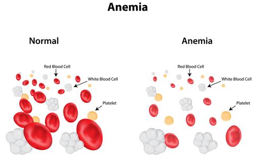 Anemia feriptiva