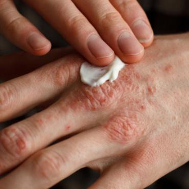 Arsuri, plăgi, răni vechi care nu se vindecă